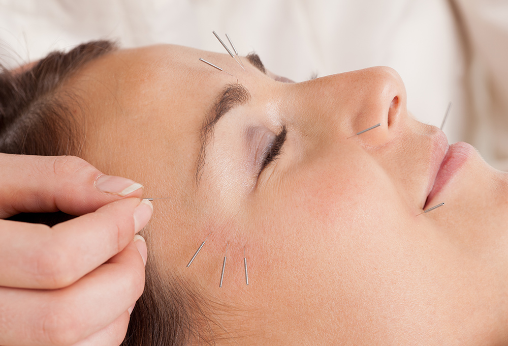 Αισθητικός Βελονισμός - Ειδικές Θεραπείες