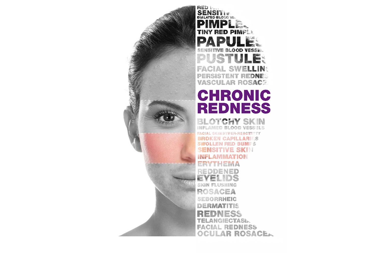 Ροδόχρους (Χρόνια Ερυθρότητα) - Θεραπείες Προσώπου
